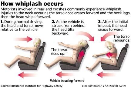 whipplash